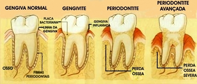 estagios-periodontite